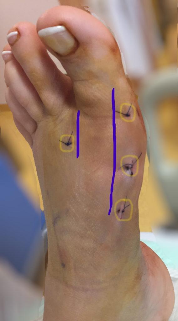 Minimalinvasive Fußchirurgie Schnittführung