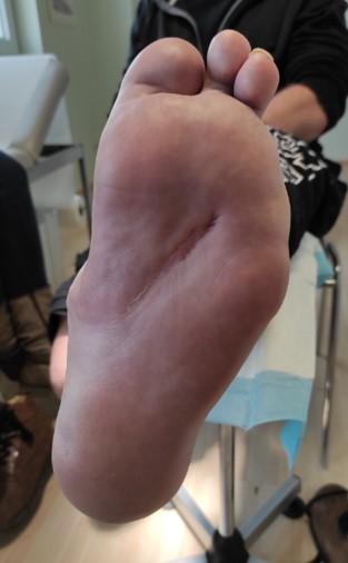 diabetisches Fußsyndrom verheilt
